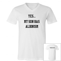 My Son Has Albinism- White